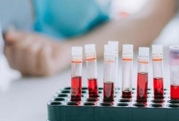 Важная информация о заборе крови 21.10